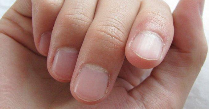 Manchas blancas en las uñas